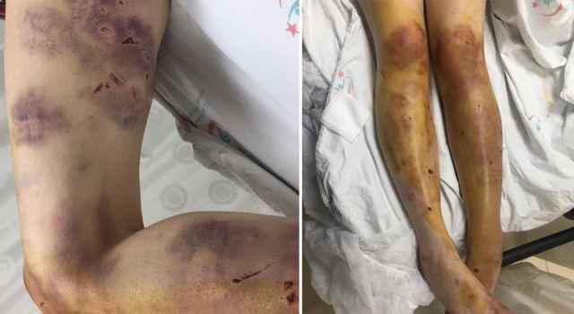 imam nikâhlı kocası kerpetenle ayak tırnaklarını çekti, zincirle dövdü!